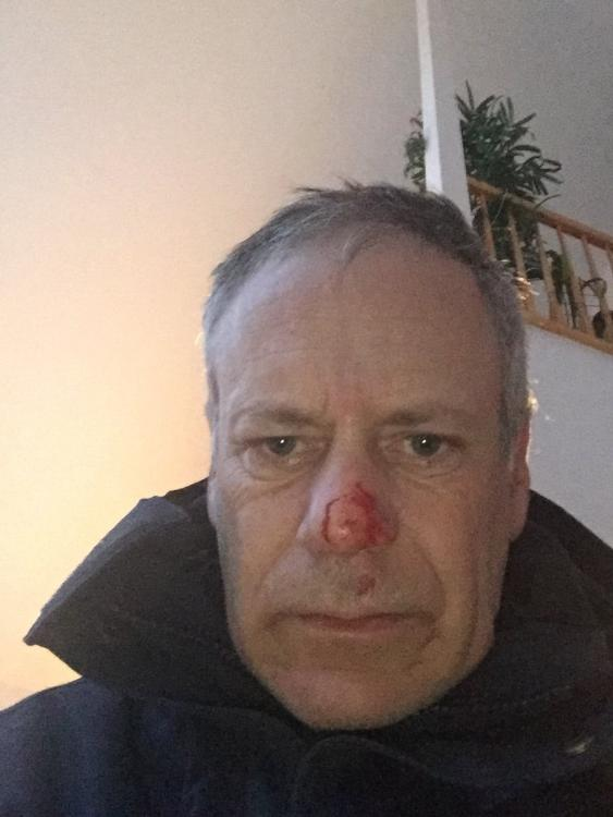 broken nose.jpg
